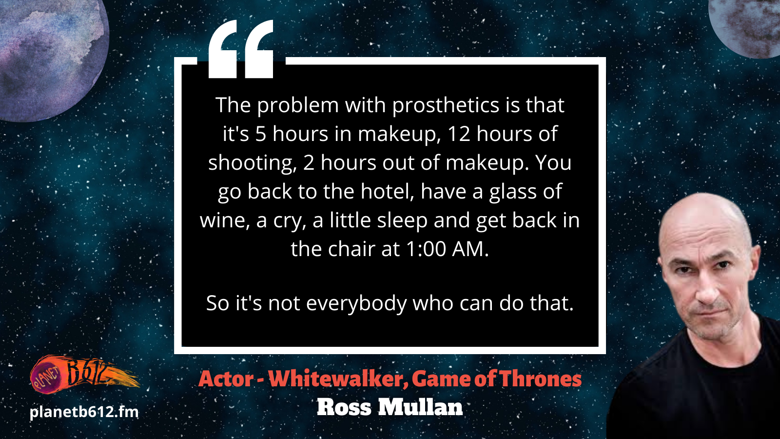 Ross Mullan talks about the reality of having to wear a ton of prosthetics for filming. Not everyone can pull that off.